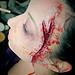 Amelia's head wound